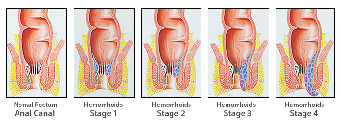 hemorrhoid stages chart